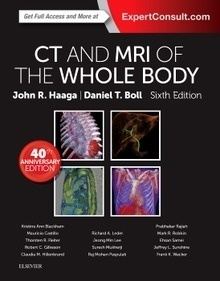 CT and MRI of the Whole Body 2 Vols.