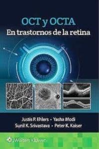 OCT y OCTA en Trastornos de la Retina